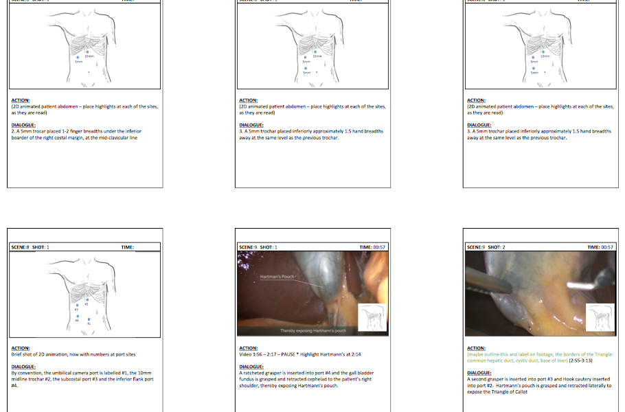 Laparoscopic Cholecystectomy animation – Storyboarding
