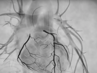 What is a coronary angiogram